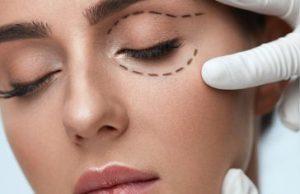 Die beliebtesten Schönheitsoperationen 2017